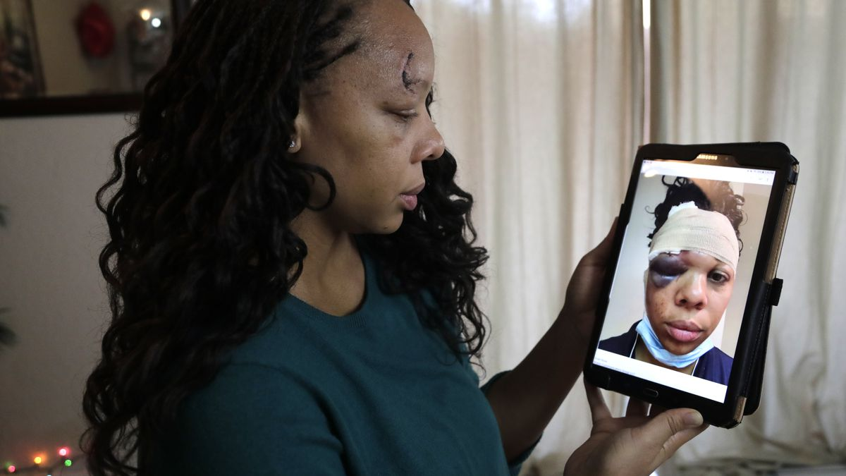 LaToya Ratlieff looks at a photograph of herself after she was hit in the face by a police officer's rubber bullet during a Fort Lauderdale protest over the death of George Floyd on May 31.