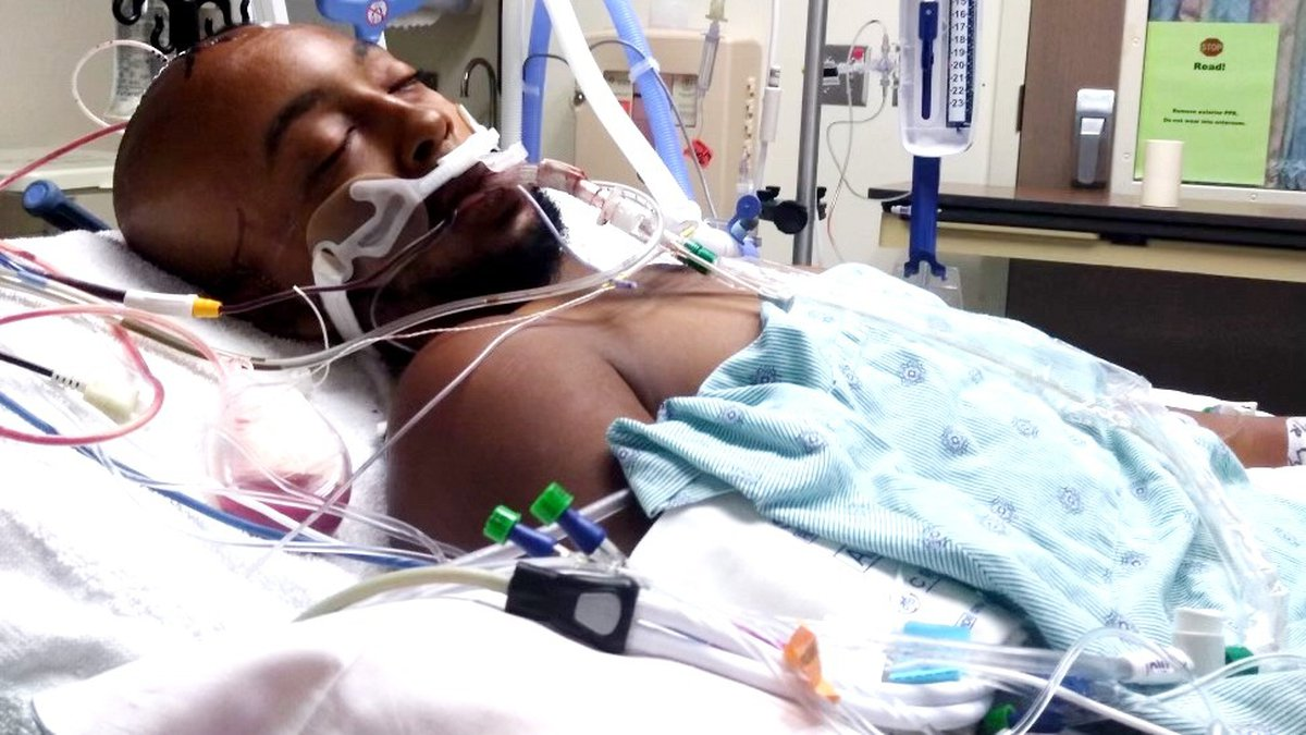 Jermaine M. Jones Jr. was in critical condition after an encounter with Richmond County deputies.